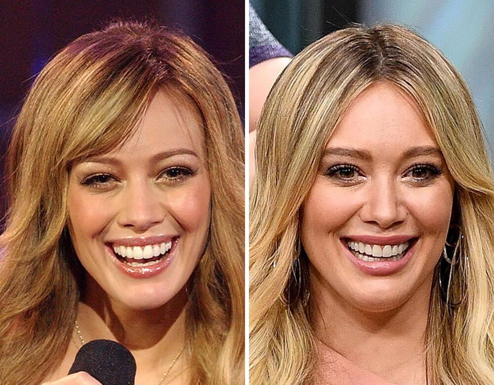 Hilary Duff Veneers Fixed